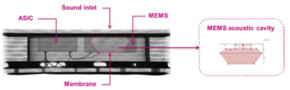 图 2 – 意法半导体MP34DT01上置声孔麦克风及其声室的X光影像